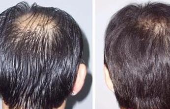 四川正规植发医院于民专家头发种植多久见效 安全性如何