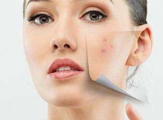 长春中妍整形做光子嫩肤多少钱 改善肤质 祛痘 祛皱