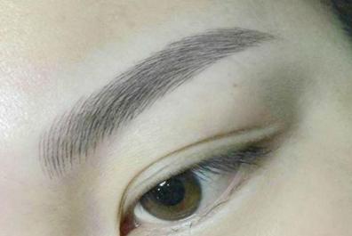 告别无眉生活 合肥雍禾植发医院眉毛种植效果好吗
