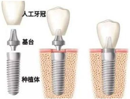 种植牙对口腔局部条件有什么要求 成都美莱整形医院为微笑加分