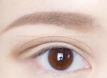 上眼睑下垂矫正的标准 沈阳名流整形医院桓莉技术如何