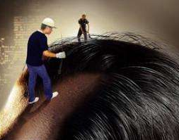 植发脱发期是什么时候 头发种植后多久能长出来