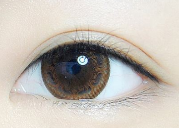 修复双眼皮哪家好 北京美莱整形杜圆圆做双眼皮修复多少钱