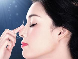 上海驼峰鼻整形 臻妮整形医院排名 呈现理想鼻型