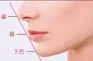郑州集美整形刘明亮<font color=red>假体隆鼻</font>无惧揉捏 稳固持久