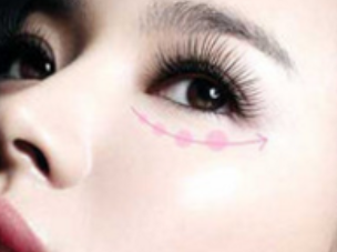 济宁韩美【无痕祛眼袋】祛眼袋要趁早 释放你的美