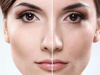 佛山华美苏晖展皮肤美容怎么样 彩光嫩肤全面解决肌肤问题
