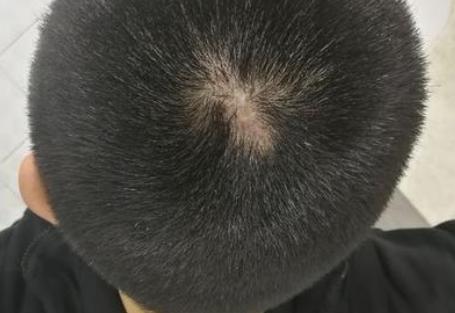广州碧莲盛植发医院疤痕植发的价钱是多少 效果好不好