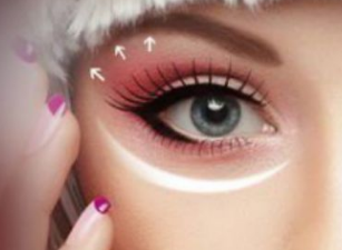 滕州时光【双眼皮优惠活动】埋线双眼皮 塑造你的媚眼
