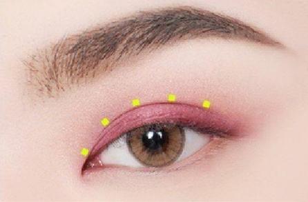 【眼部整形】双眼皮/去眼袋 美丽无痕 让双眼更迷人
