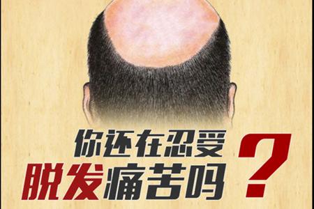 南京疤痕植发哪里好 植发的效果怎么样