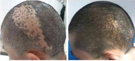 疤痕植发费用高吗 北京武警总院疤痕植发怎么样