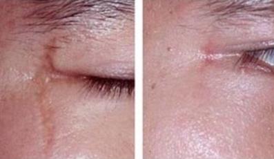 南京贝缇整形医院激光祛疤多少钱 多久能恢复