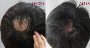 武汉地区做疤痕植发要多少钱 雍禾植发靠谱吗