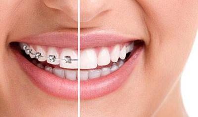 牙齿矫正的方法有哪些 贵阳利美康罗幼刚牙齿矫正多少钱