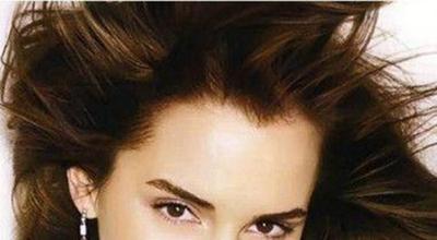 柳州贞韩植发种美人尖多少钱 个性植发 效果自然持久