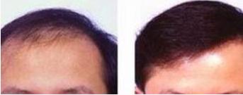 济南海峡植发医院专业吗 头发加密后多久见效