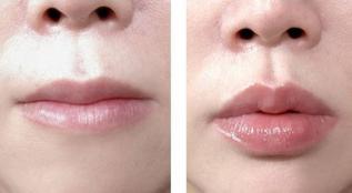 上饶协和医院整形科玻尿酸丰唇大概多少钱 能保持多久