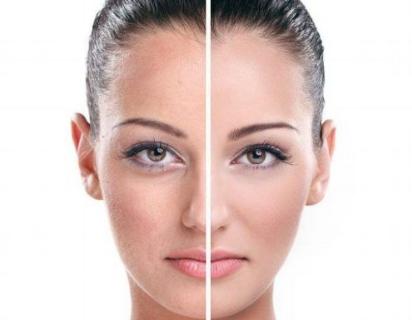 电波拉皮除皱能保持几年 宁波唯格整形为您消除多种岁月痕迹
