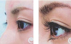 沈阳雍禾植发医院高欣专家植发怎么样 做睫毛种植效果好吗