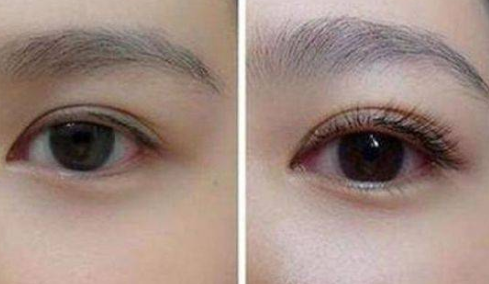 睫毛种植效果好吗 西安雍禾植发睫毛种植多少钱