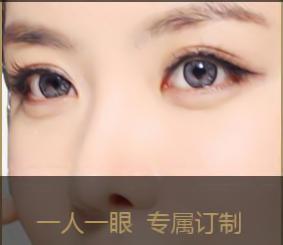 北京东方百合整形医院王世勇专家双眼皮修复 让你美得放心