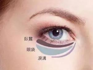 眼袋大怎么去 郑州花绽整形医院激光去眼袋收费表【惠】