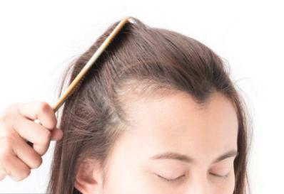 深圳雍禾植发哪位专家好 周龙飞美人尖种植怎么样