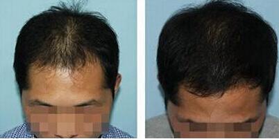 石家庄雍禾植发医院头发加密效果 专科植发有保障