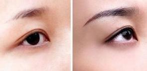 宁波美莱整形医院种植眉毛多少钱