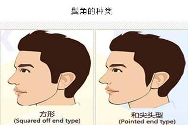 FUE鬓角种植手术过程 郑州科发源植发医院正规吗