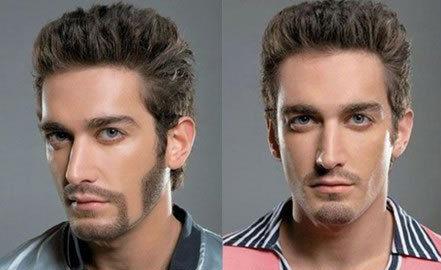 胡须种植后多久能刮胡子 杭州碧莲盛植发不留痕 成活率高