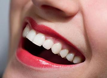 牙齿贴面可以维持几年 西安壹加壹整形杜岗让牙齿自然亮白