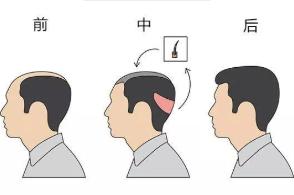 北京新面孔【头发加密】年中钜惠 一次种植 终身受益
