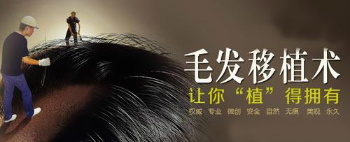 毛发移植价格表 济南瑞丽诗植发医院头发种植多少钱