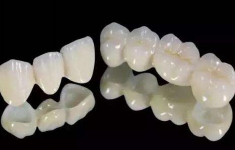 做烤瓷牙需要就诊几次 长春珍妮整形让牙齿为形象加分