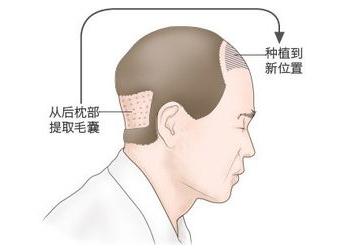 如何挑选植发机构 东莞美立方植发整形科调整发际线 重回颜值巅峰
