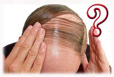 植发有后遗症吗 重庆重生毛发移植头发种植的优点