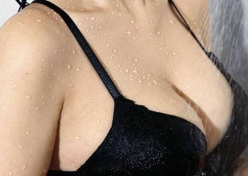 青岛华韩胸部整形价目表 车柄勋做乳房下垂矫正术多少钱