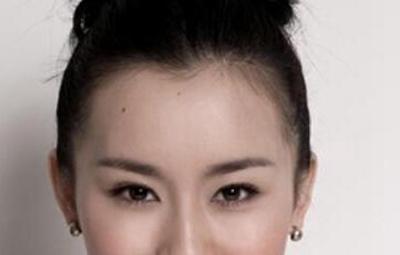 上海科发源种美人尖需要多钱 手术安全吗