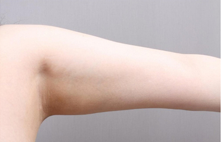 整手臂吸脂好吗 北京艾玛整形医院韦元强很可靠