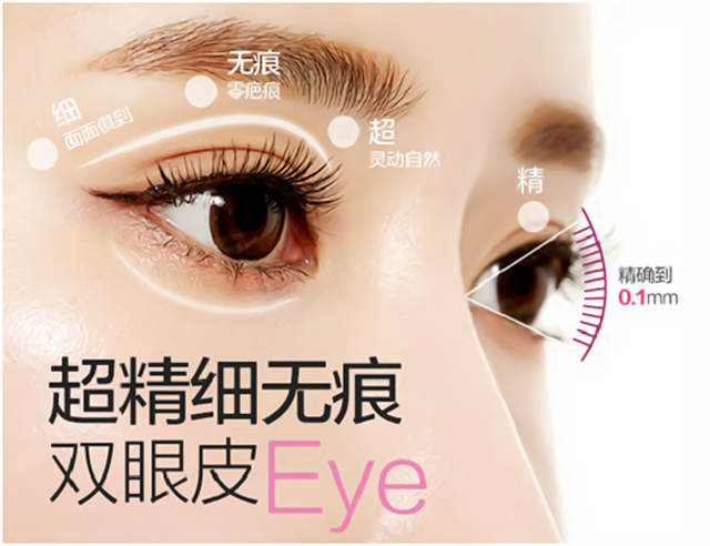 上海美立方【无痕媚眼术】双眼皮五星口碑