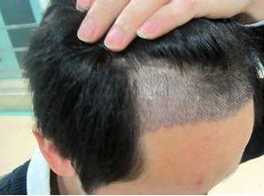 北京丽都植发医院疤痕植发效果好吗 疤痕植发后多久长出来