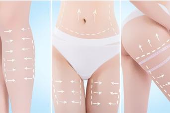 如何快速减肥 北京美莱王志强吸脂瘦身 院长亲诊30分钟速成