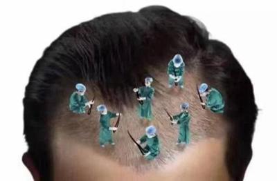 武汉五洲植发医院头发种植 过程简单安全 轻松解决秃头