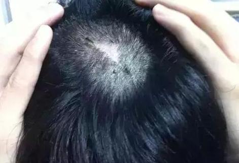 江苏人民医院植发科范卫新疤痕植发效果 恢复魅力形象