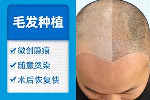 哪里植头发好 上海411医院植发科刘海头发种植专业
