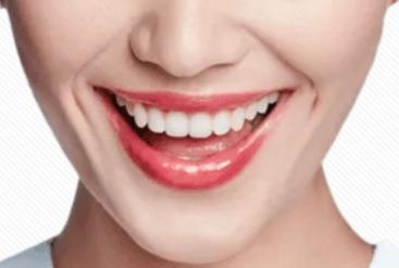牙齿矫正的适宜年龄 四川悦好整形牙齿矫正贵吗 王琦让牙齿整齐划一