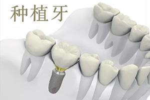 种植牙多少钱一颗2021价格表 太原华美整形医院让您自信微笑