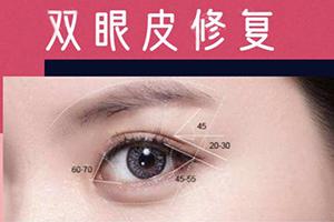双眼皮修复难吗 天津伊美尔整形专科医院双眼皮的修复价格贵吗